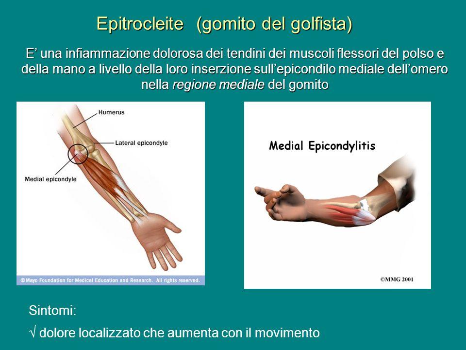 Epitrocleite (gomito del golfista)