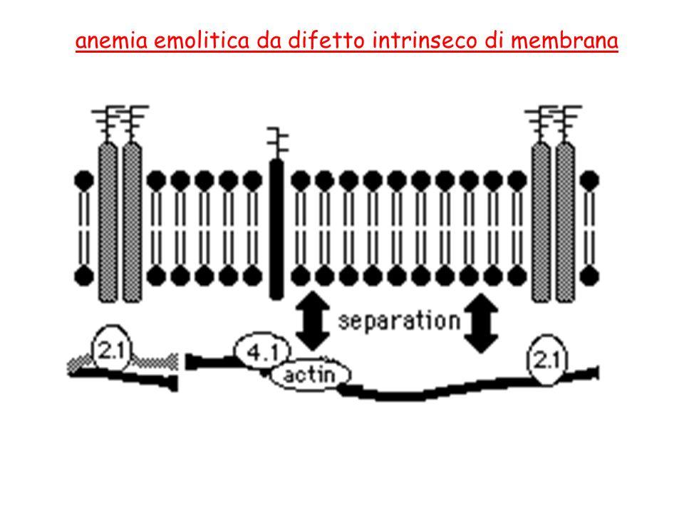anemia emolitica da difetto intrinseco di membrana