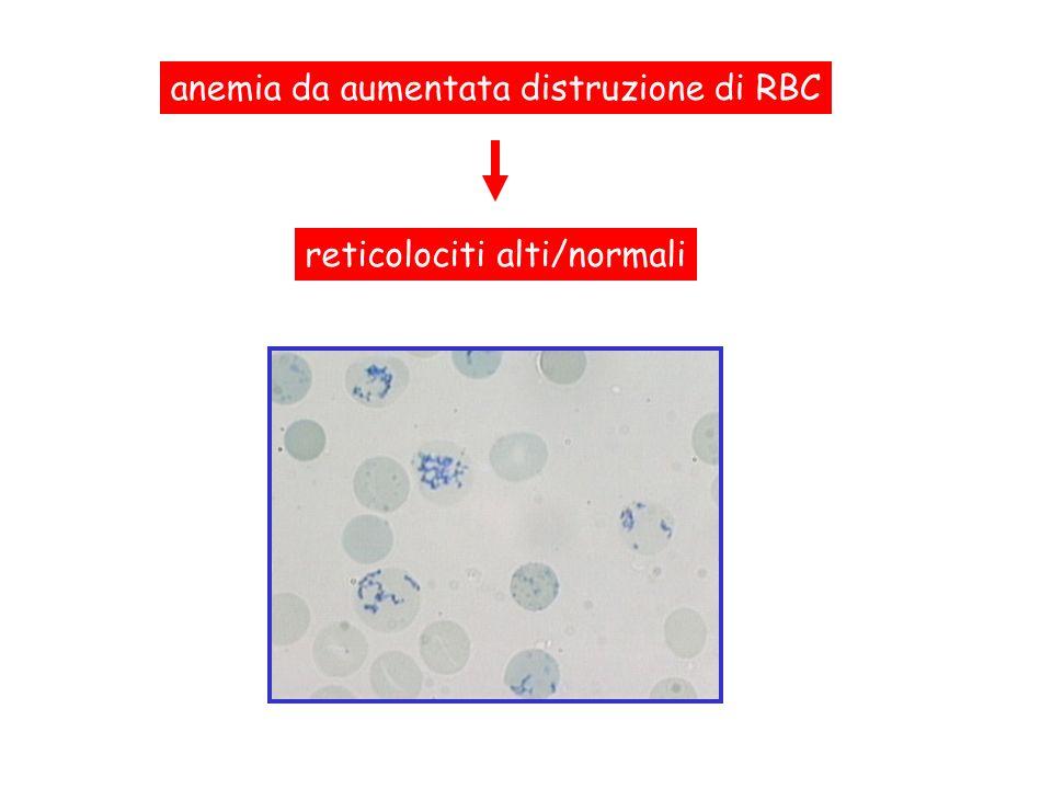 anemia da aumentata distruzione di RBC