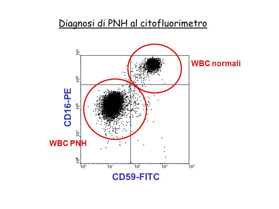 Diagnosi di PNH al citofluorimetro