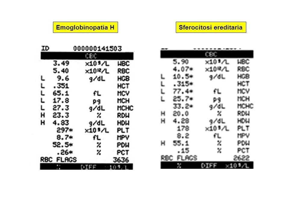 Emoglobinopatia H Sferocitosi ereditaria