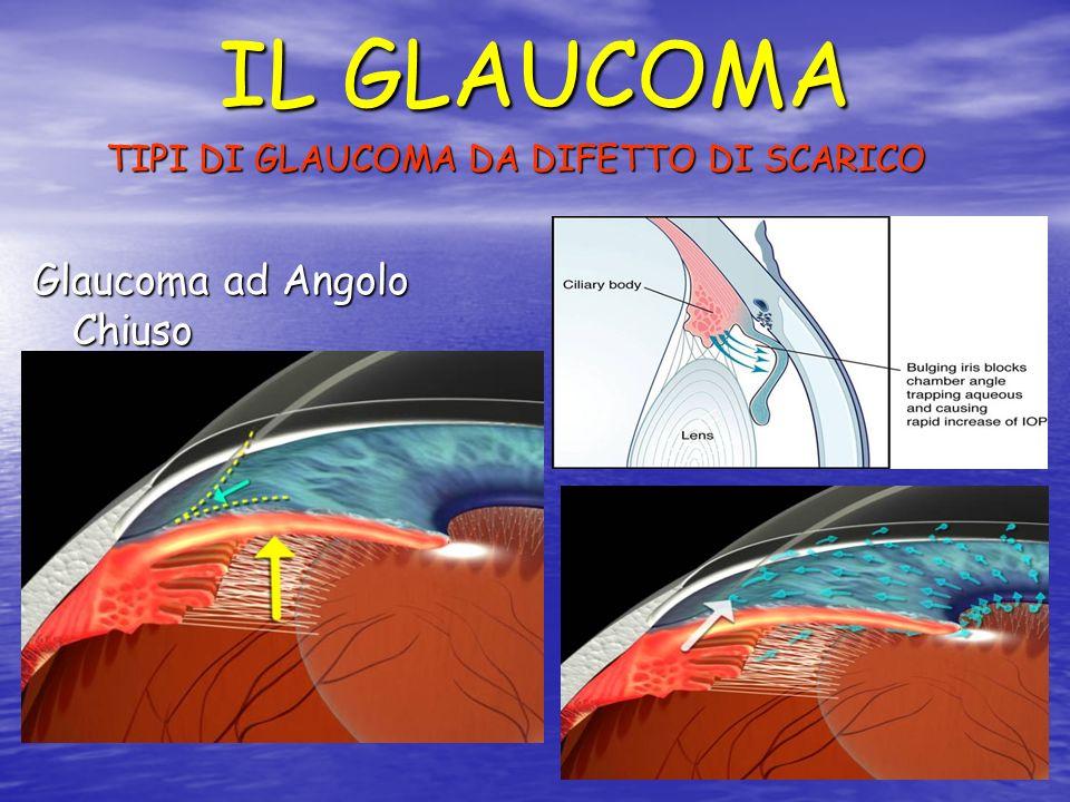 TIPI DI GLAUCOMA DA DIFETTO DI SCARICO