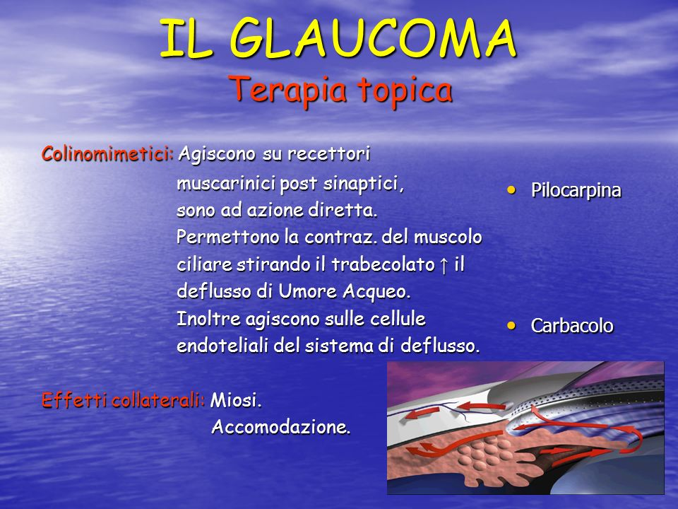 IL GLAUCOMA Terapia topica
