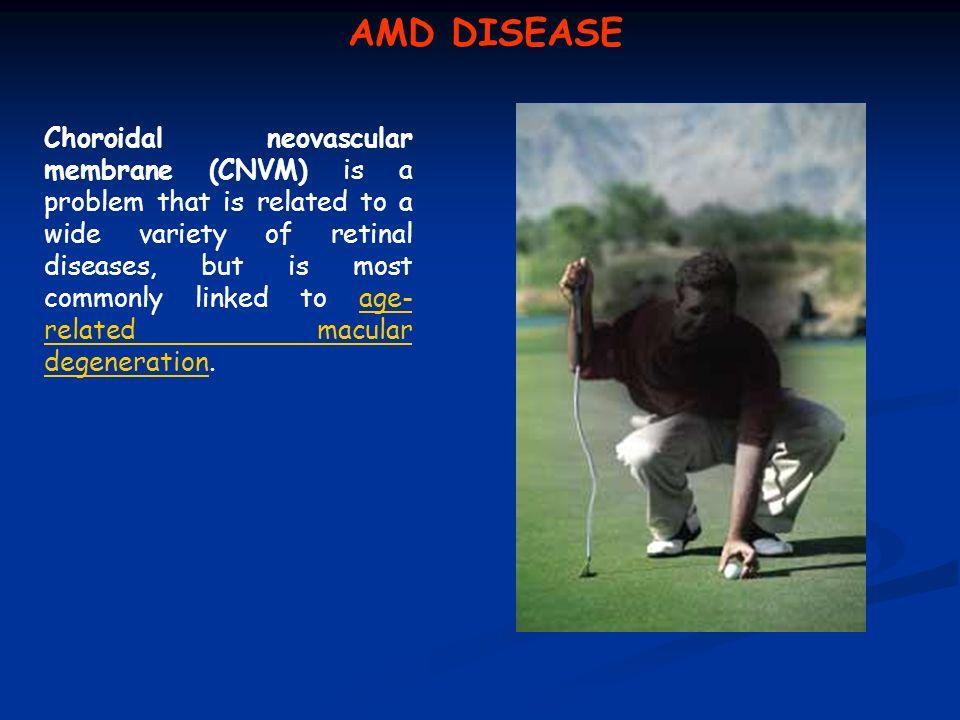 AMD DISEASE