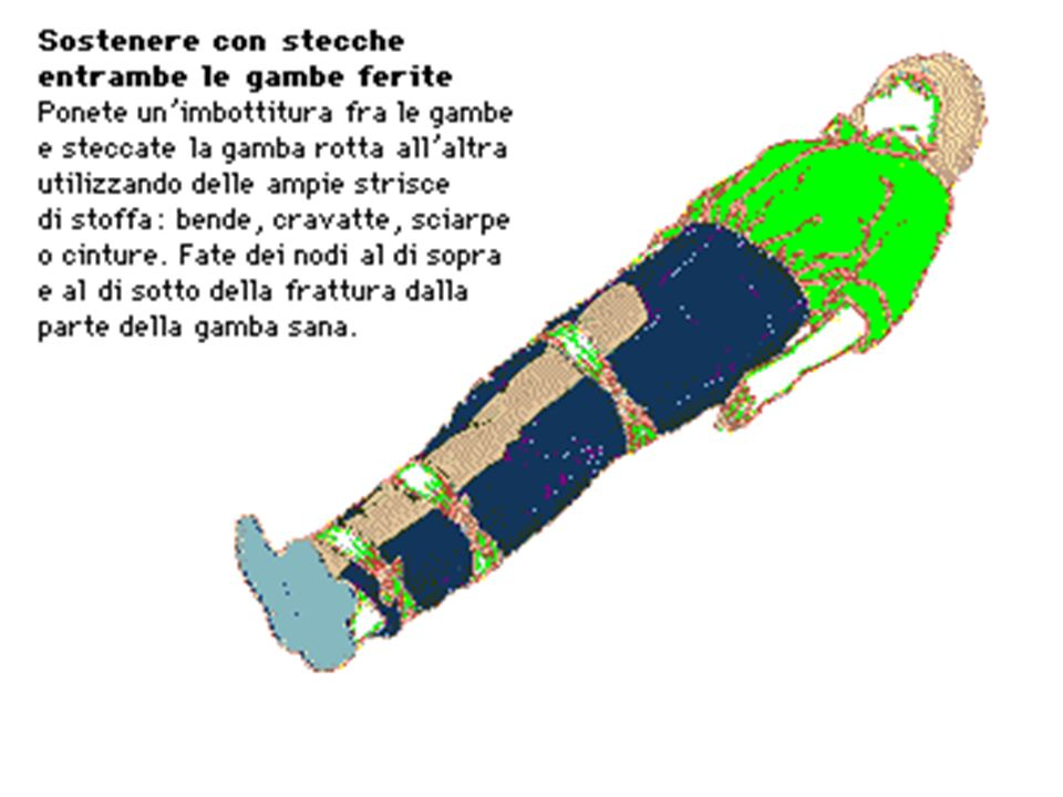 Nel caso di un arto fratturato, invece di usare stecche si può usare come supporto una parte del corpo sana.