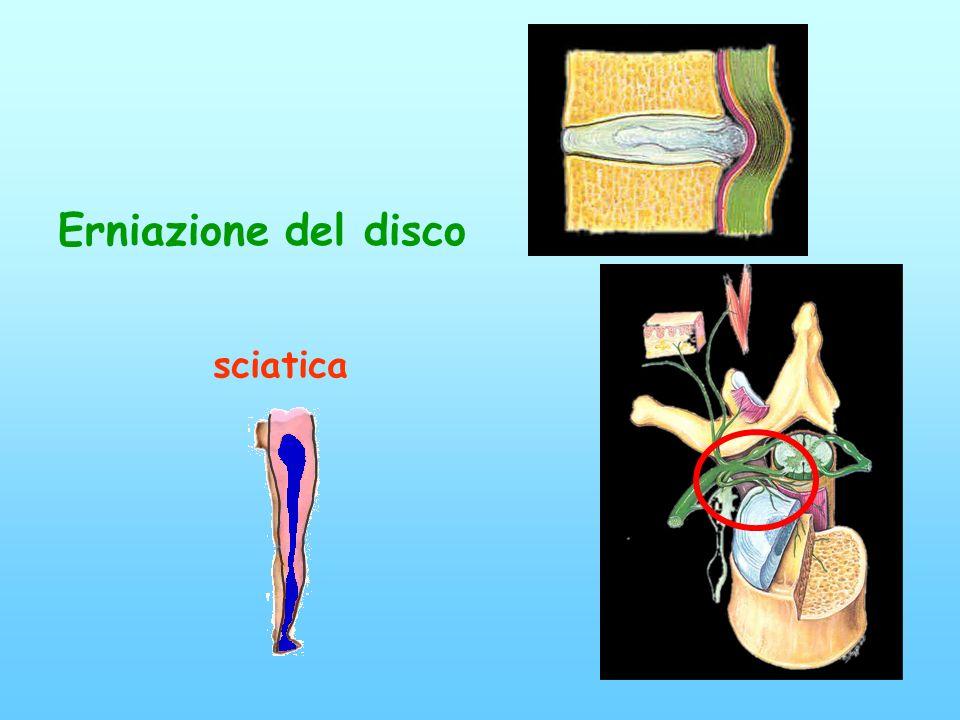 Erniazione del disco sciatica Conflitto disco-radicolare=sciatica