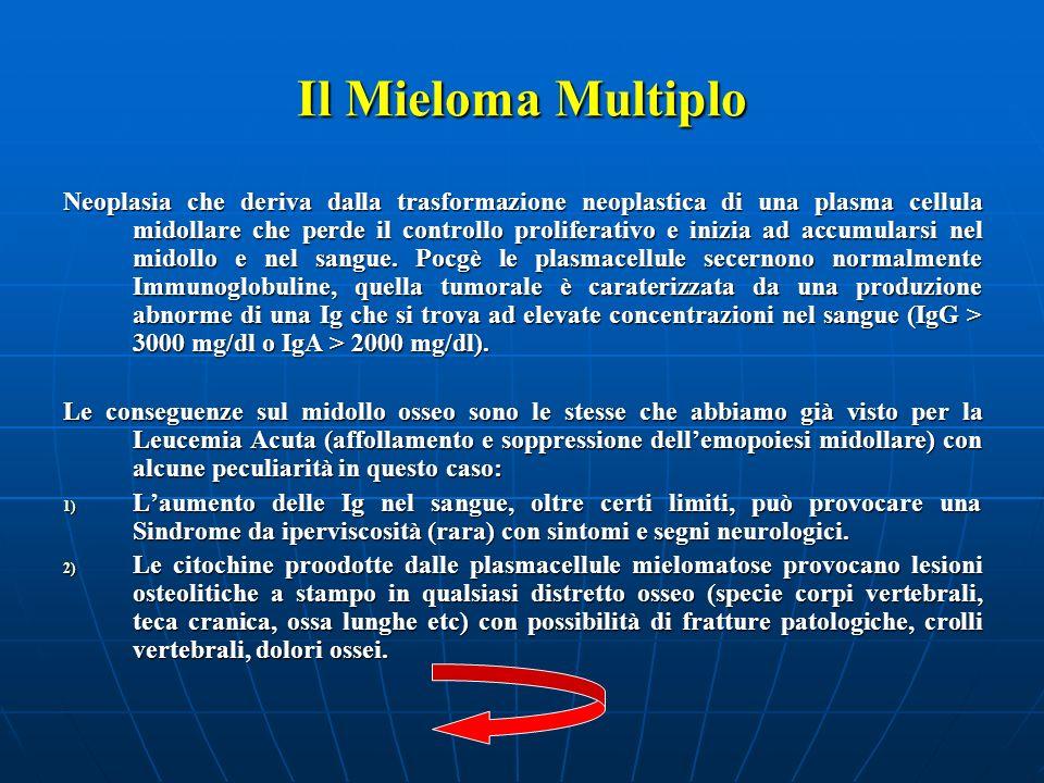 Il Mieloma Multiplo