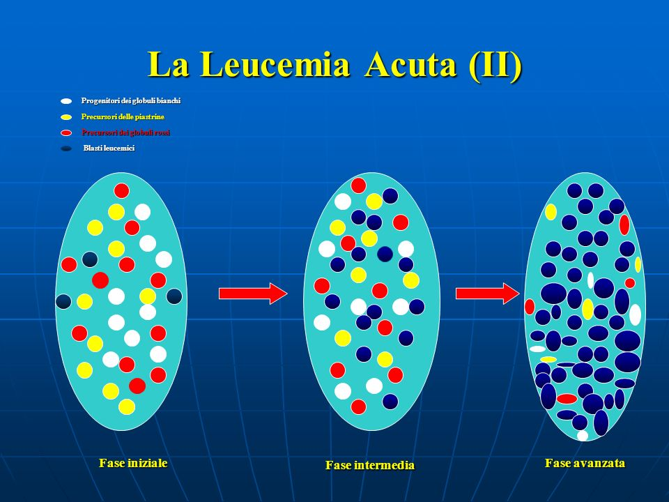 La Leucemia Acuta (II) Fase intermedia Fase iniziale Fase avanzata