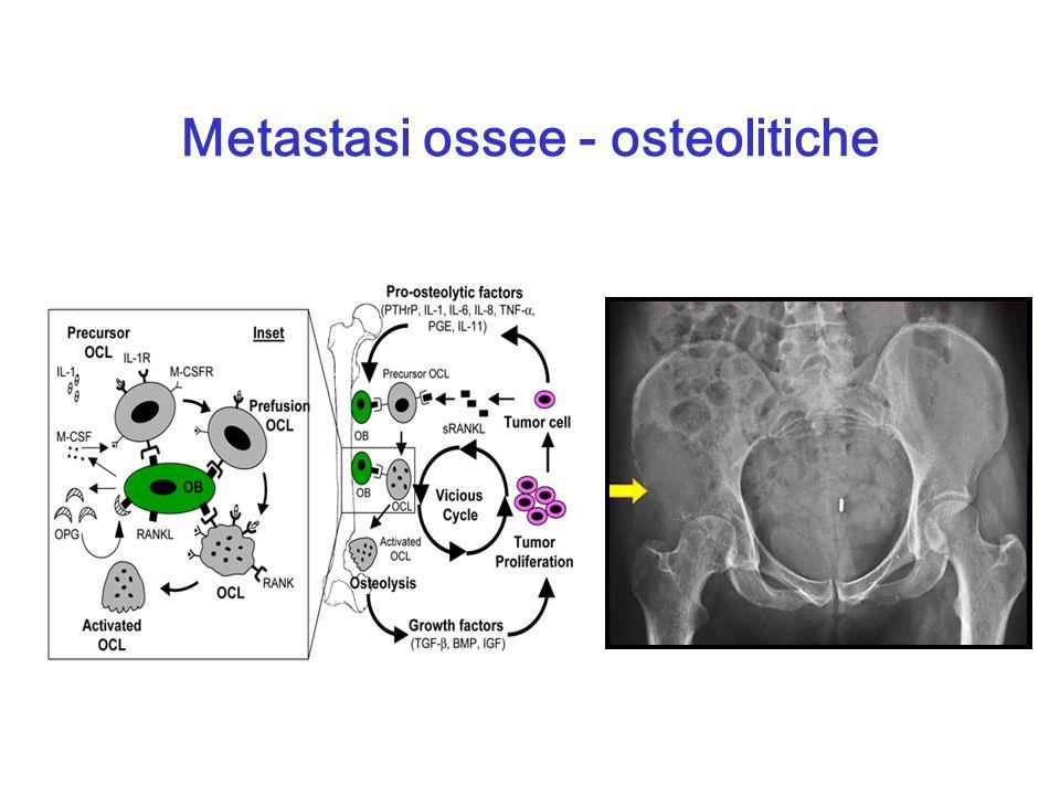 Metastasi ossee - osteolitiche