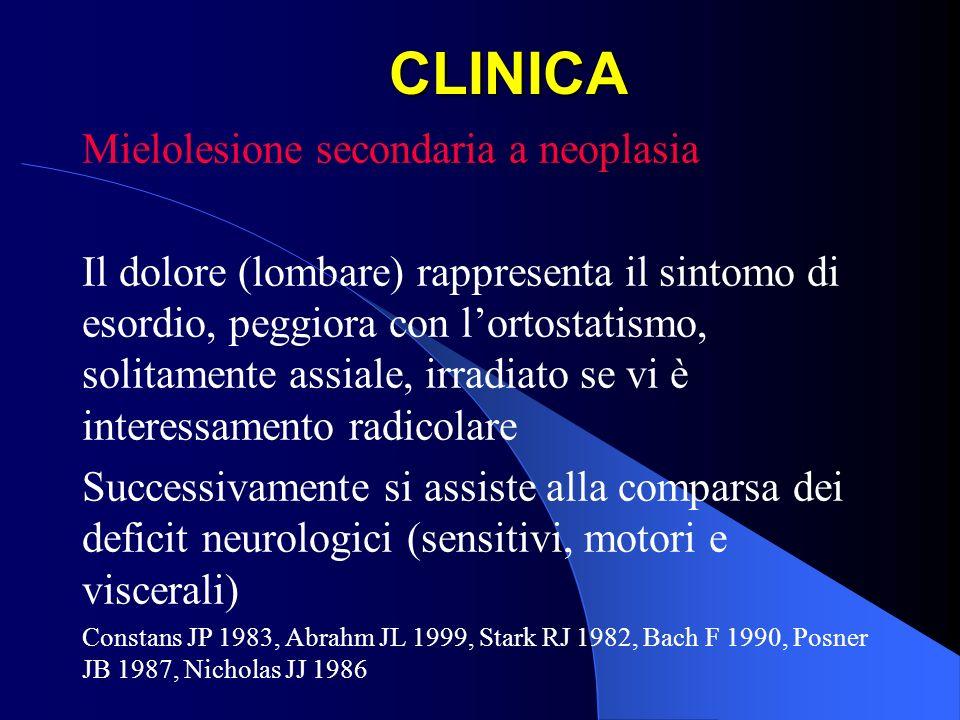 CLINICA Mielolesione secondaria a neoplasia