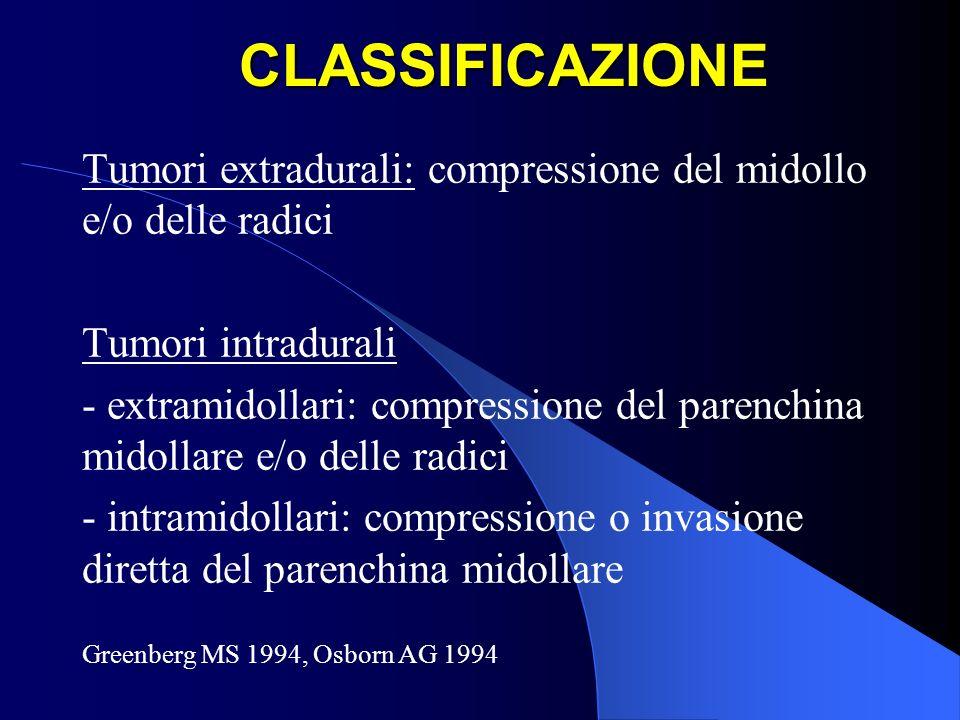 CLASSIFICAZIONE Tumori extradurali: compressione del midollo e/o delle radici. Tumori intradurali.