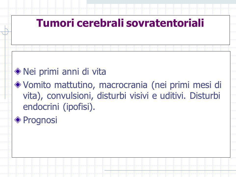 Tumori cerebrali sovratentoriali