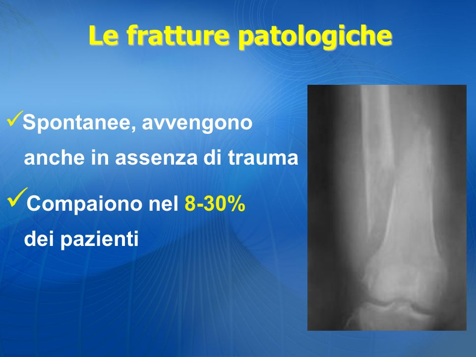 Le fratture patologiche