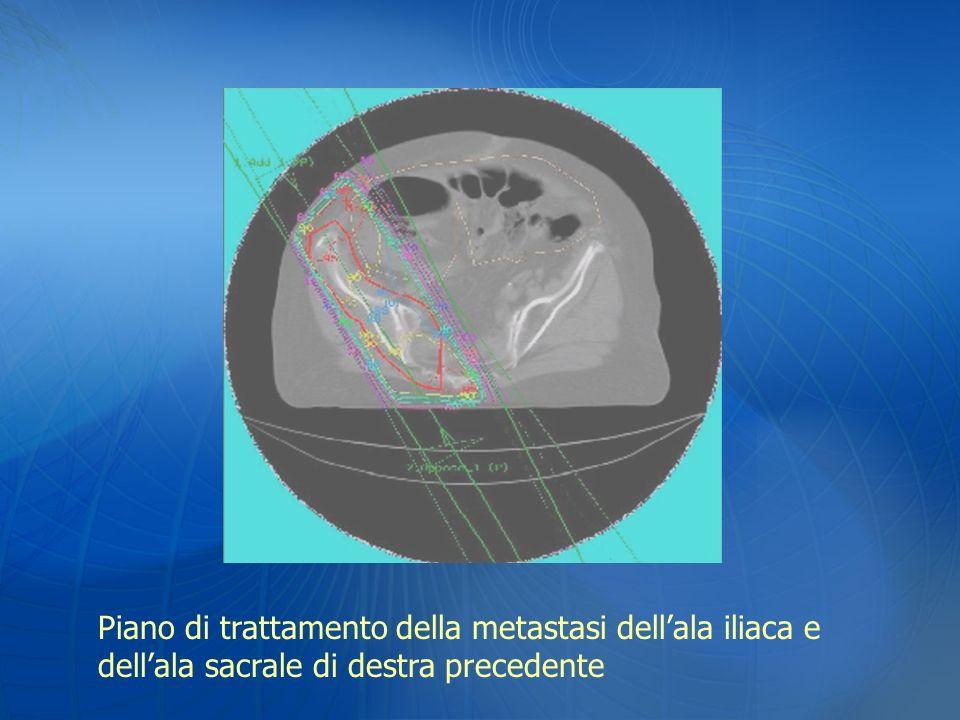 Piano di trattamento della metastasi dell'ala iliaca e dell'ala sacrale di destra precedente