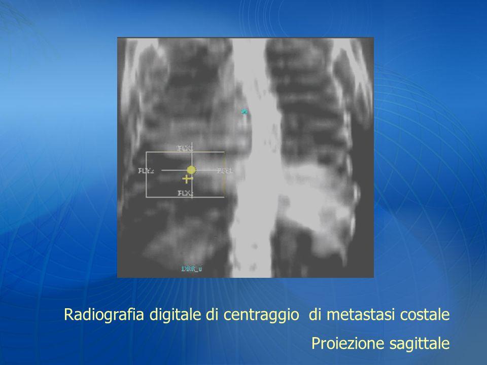 Radiografia digitale di centraggio di metastasi costale