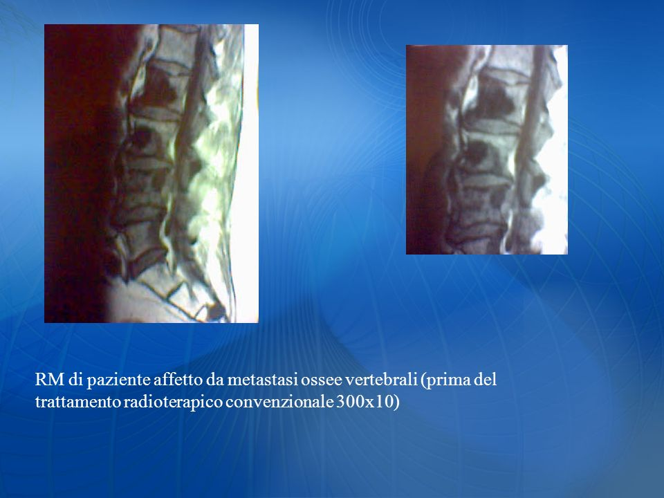 RM di paziente affetto da metastasi ossee vertebrali (prima del trattamento radioterapico convenzionale 300x10)