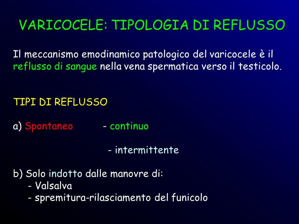 VARICOCELE: TIPOLOGIA DI REFLUSSO