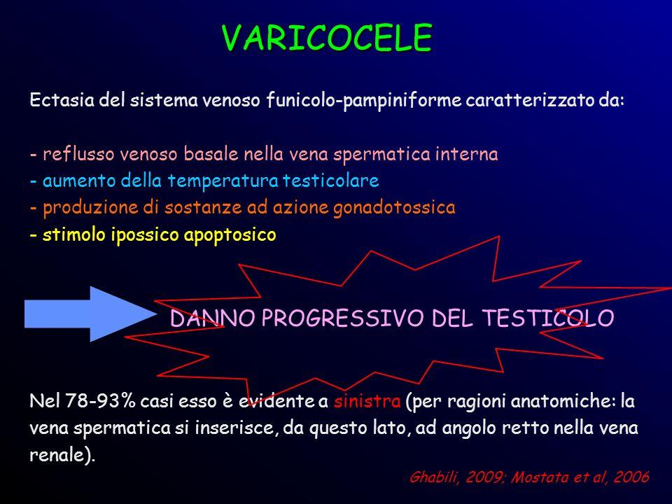 VARICOCELE Ectasia del sistema venoso funicolo-pampiniforme caratterizzato da: - reflusso venoso basale nella vena spermatica interna.