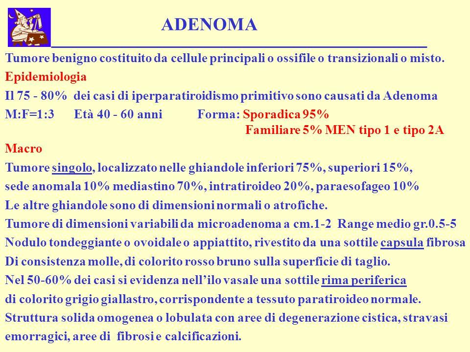 ADENOMA Tumore benigno costituito da cellule principali o ossifile o transizionali o misto. Epidemiologia.