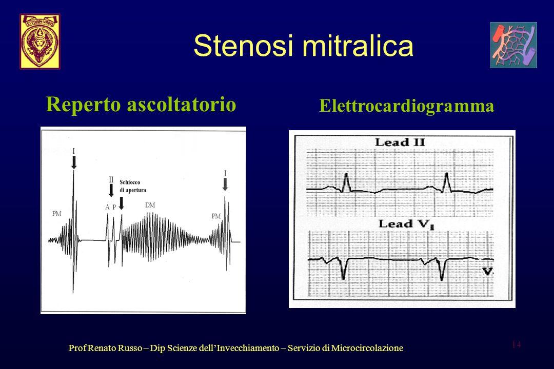 Stenosi mitralica Reperto ascoltatorio Elettrocardiogramma