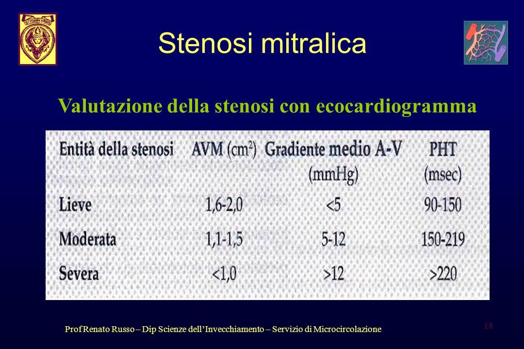Stenosi mitralica Valutazione della stenosi con ecocardiogramma