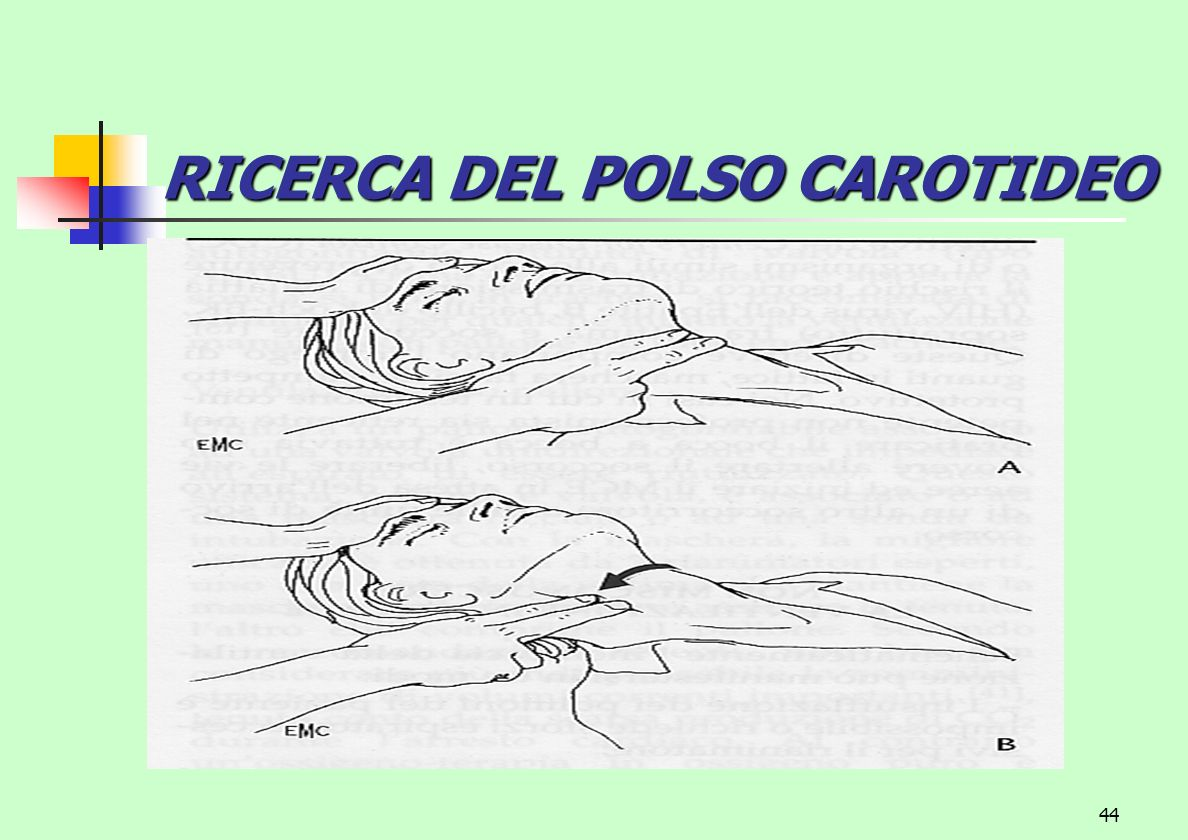 RICERCA DEL POLSO CAROTIDEO