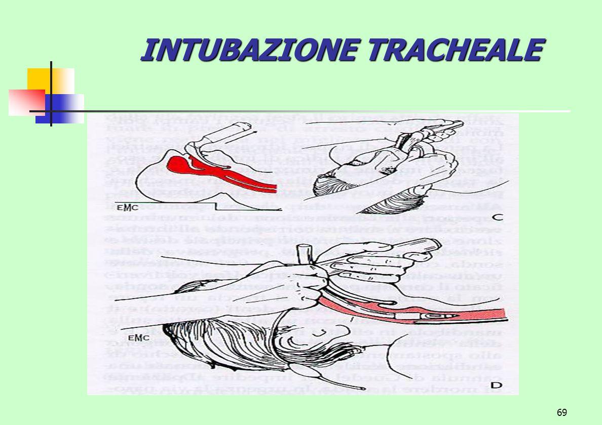 INTUBAZIONE TRACHEALE