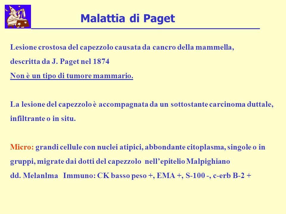Malattia di Paget Lesione crostosa del capezzolo causata da cancro della mammella, descritta da J. Paget nel 1874.