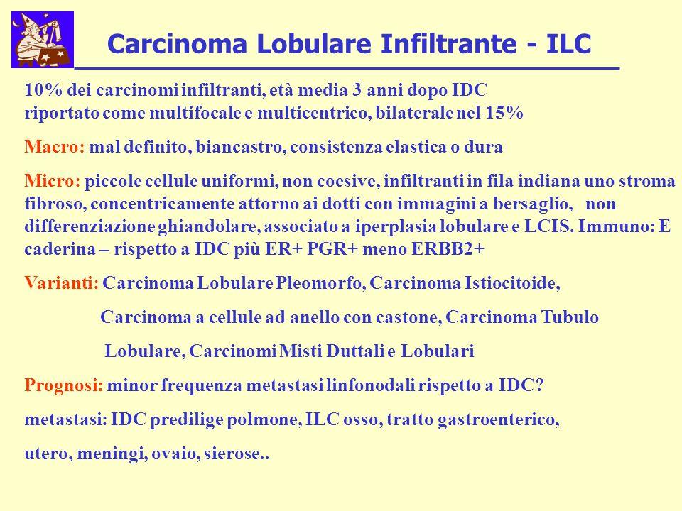 Carcinoma Lobulare Infiltrante - ILC