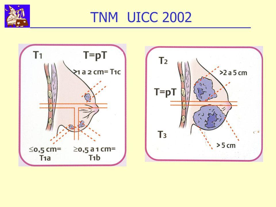 TNM UICC 2002