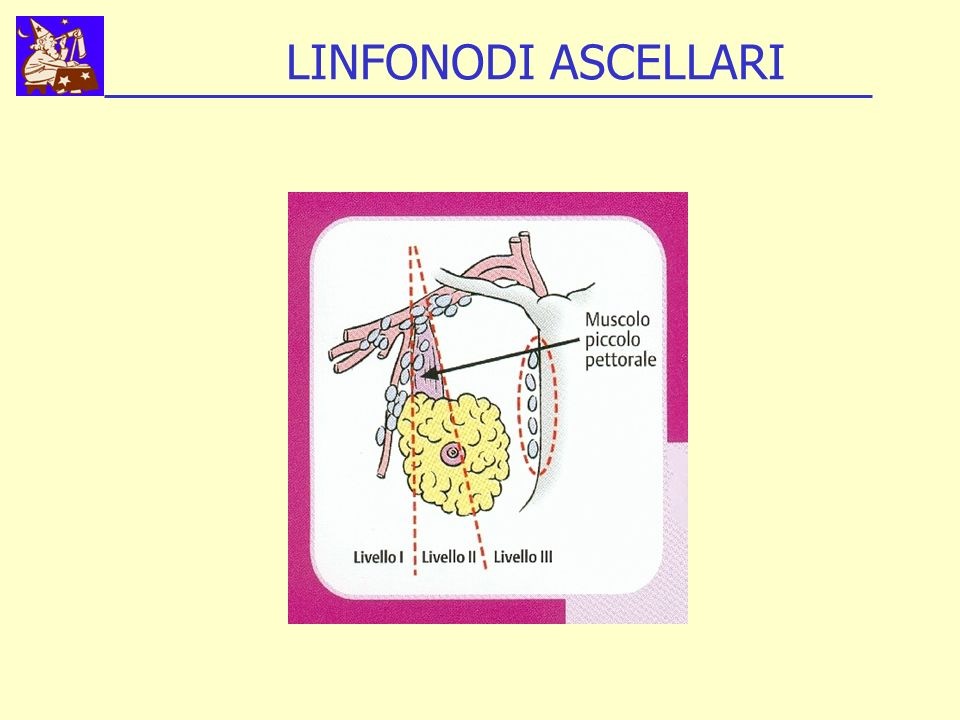 LINFONODI ASCELLARI
