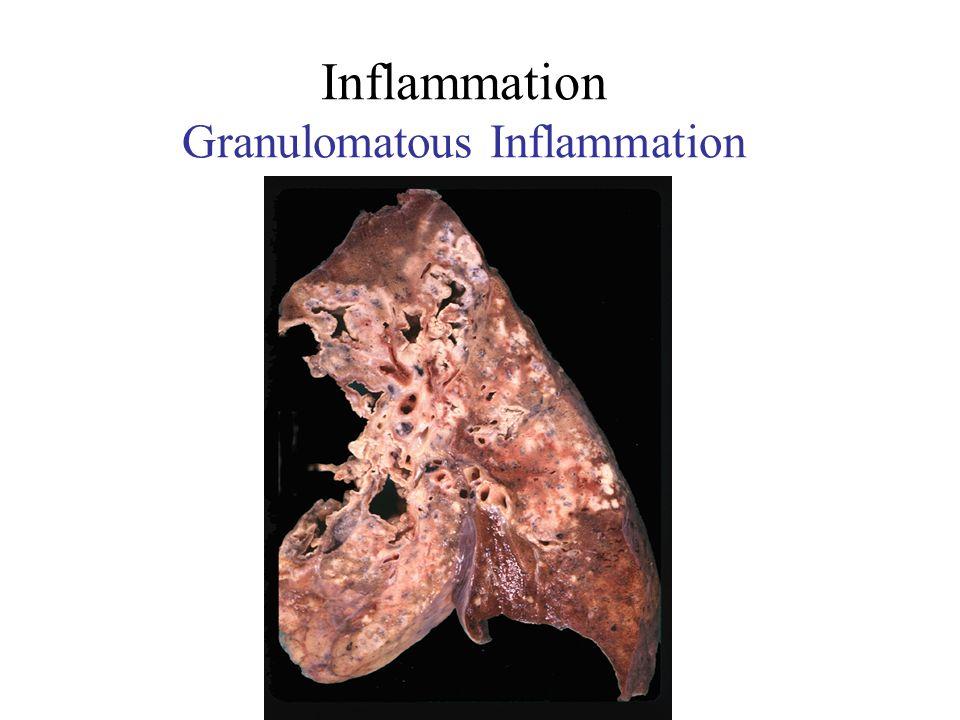 Inflammation Granulomatous Inflammation