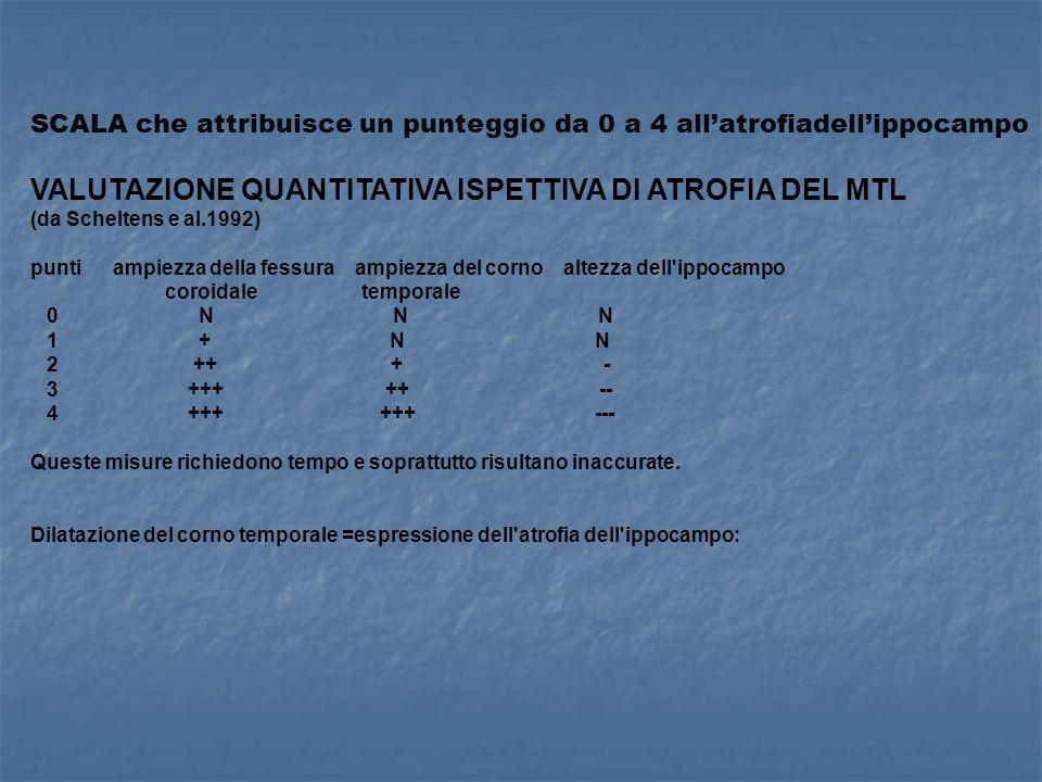 SCALA che attribuisce un punteggio da 0 a 4 all'atrofiadell'ippocampo