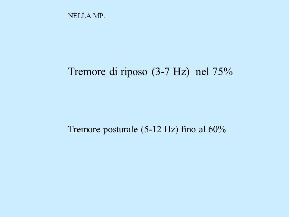 Tremore di riposo (3-7 Hz) nel 75%