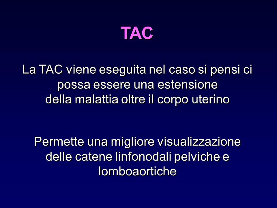 TAC La TAC viene eseguita nel caso si pensi ci possa essere una estensione. della malattia oltre il corpo uterino.
