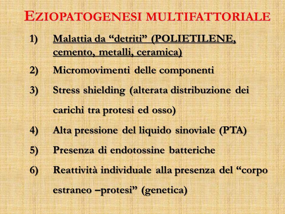 Eziopatogenesi multifattoriale
