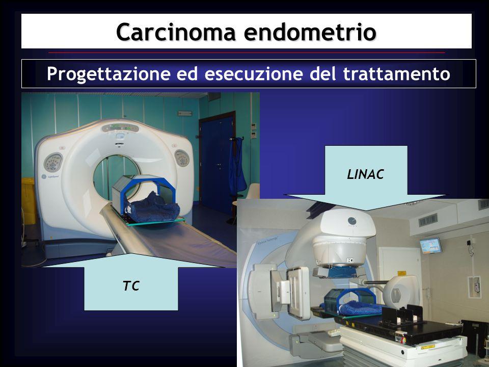Progettazione ed esecuzione del trattamento