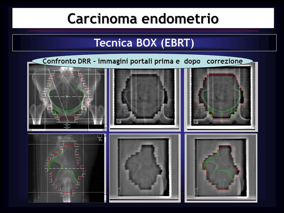 Confronto DRR - immagini portali prima e dopo correzione