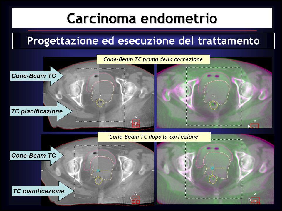 Carcinoma endometrio Progettazione ed esecuzione del trattamento