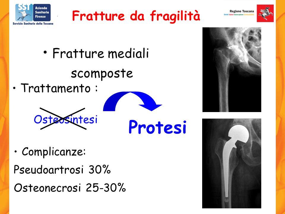 Protesi Fratture da fragilità Fratture mediali scomposte Trattamento :