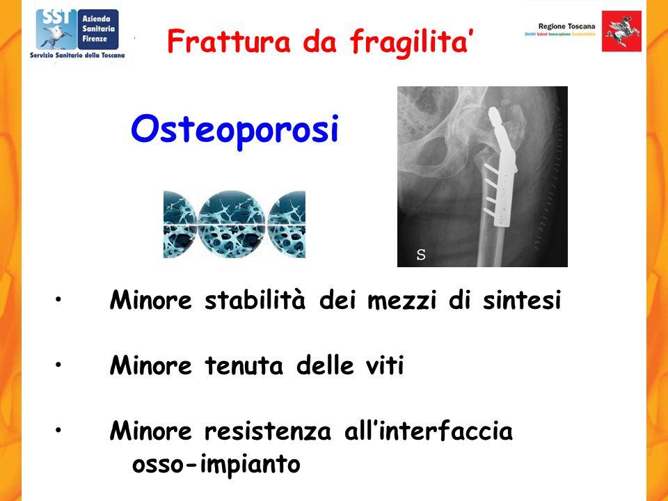 Osteoporosi Frattura da fragilita'