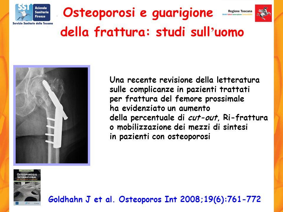 Osteoporosi e guarigione della frattura: studi sull'uomo