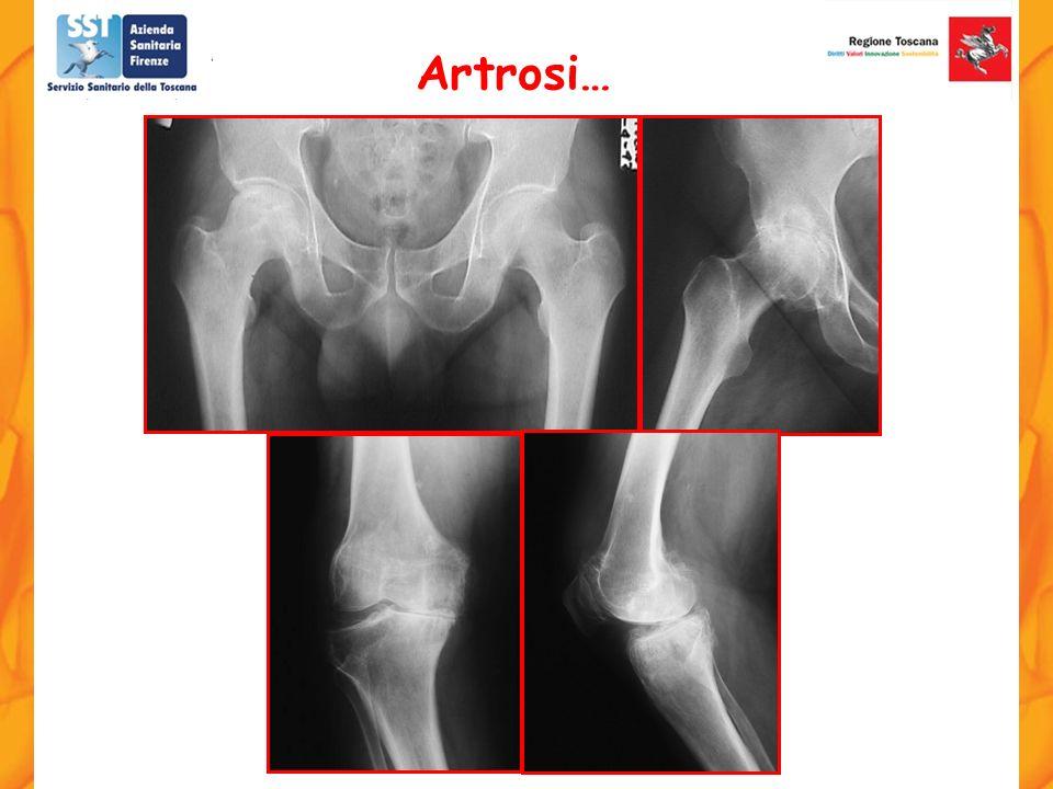 Artrosi…