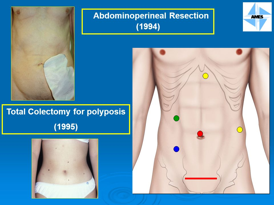 Abdominoperineal Resection (1994) Total Colectomy for polyposis