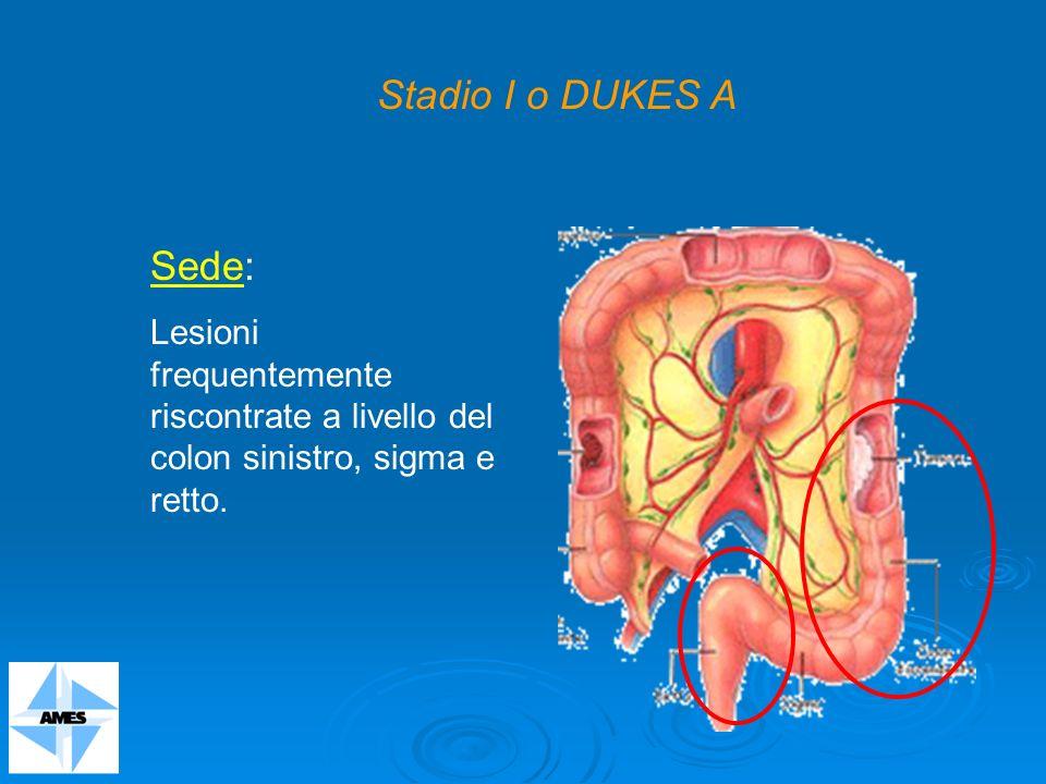 Stadio I o DUKES A Sede: Lesioni frequentemente riscontrate a livello del colon sinistro, sigma e retto.