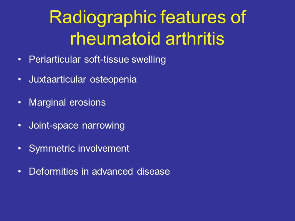 Radiographic features of rheumatoid arthritis