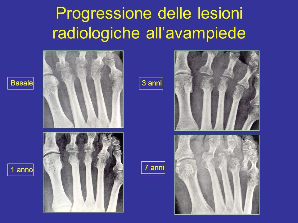 Progressione delle lesioni radiologiche all'avampiede