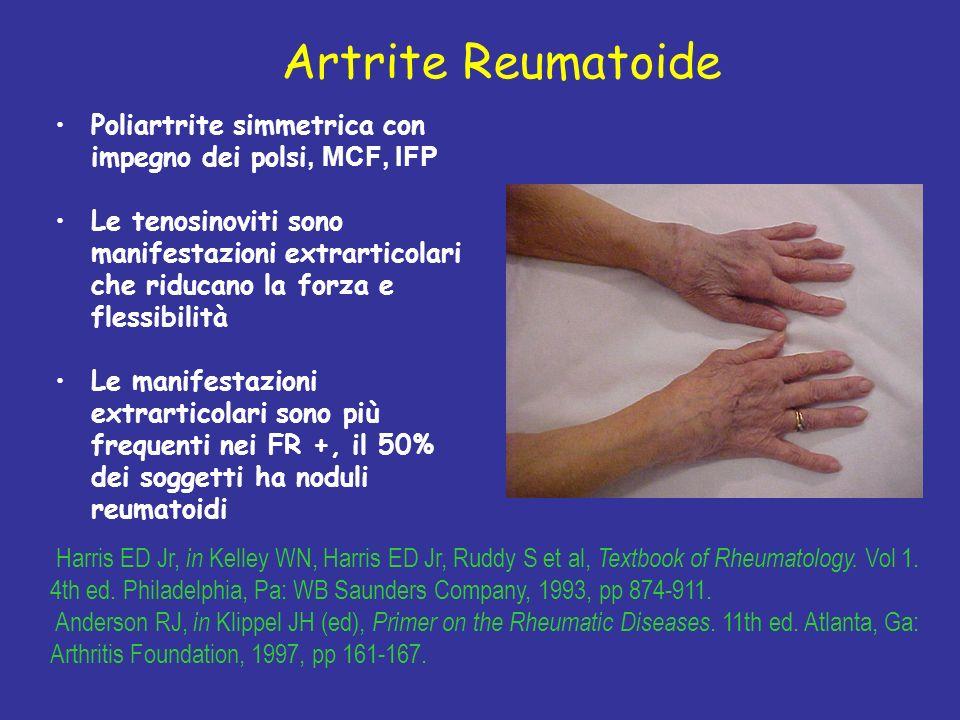 Artrite Reumatoide Poliartrite simmetrica con impegno dei polsi, MCF, IFP.