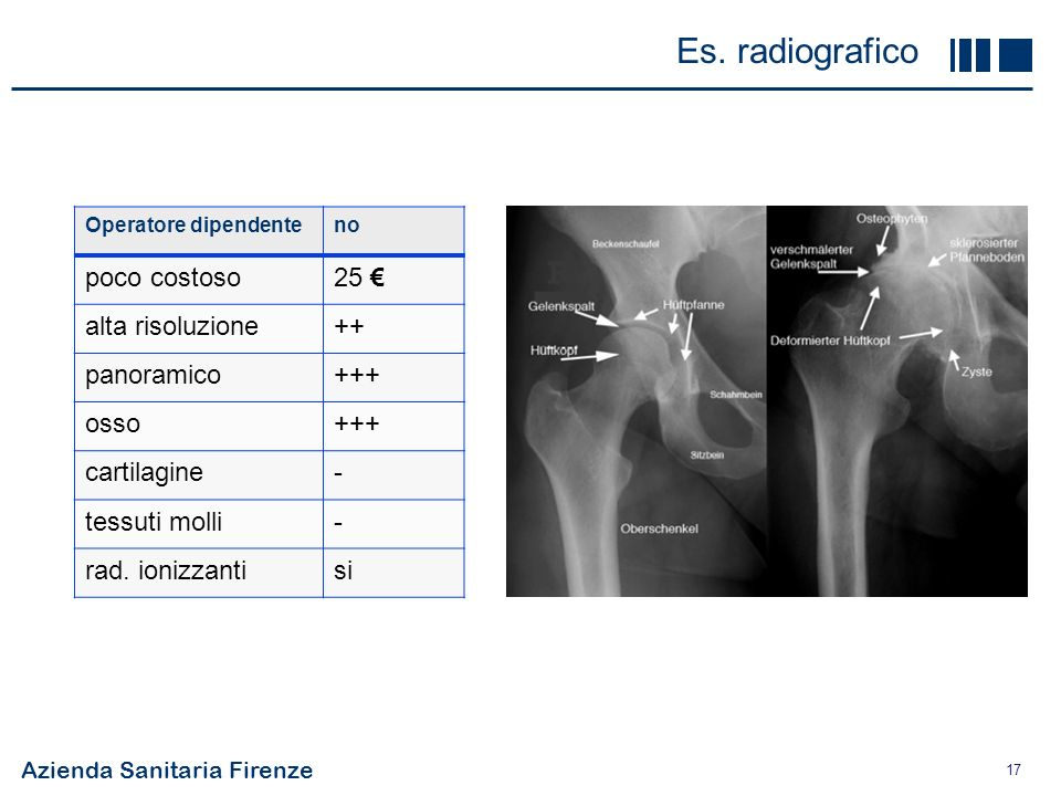 Es. radiografico poco costoso 25 € alta risoluzione ++ panoramico +++