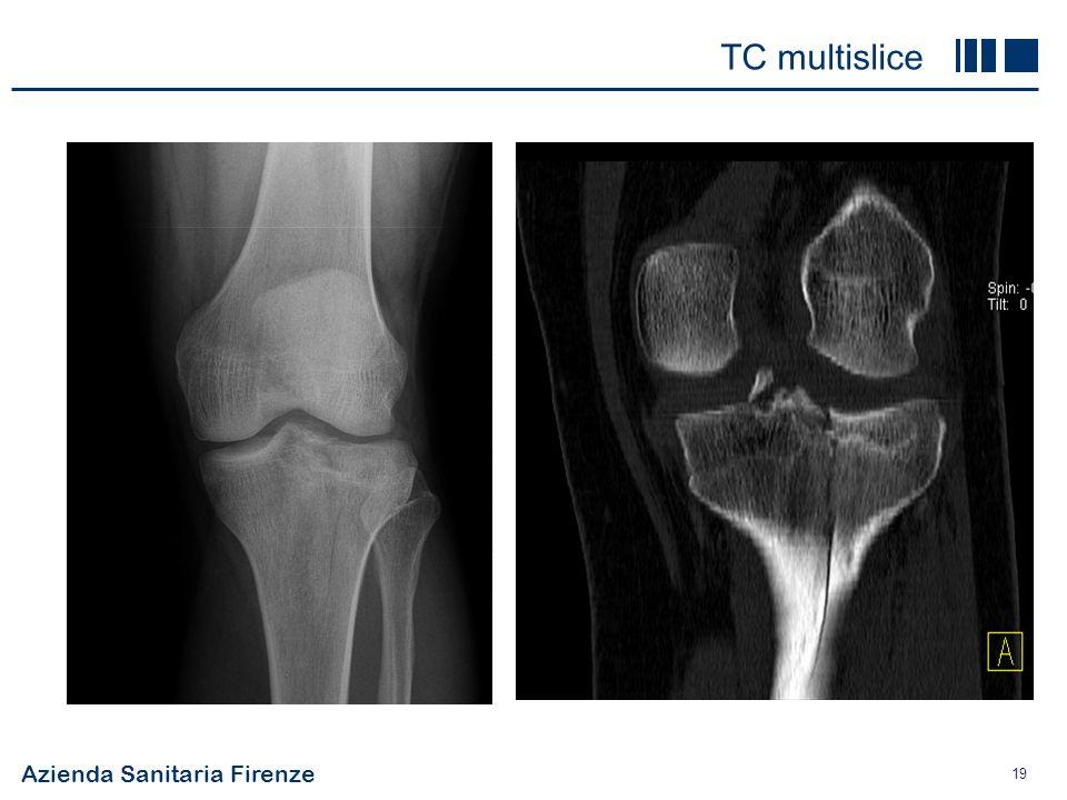 TC multislice costoso 86.5 € alta risoluzione +++ panoramico osso